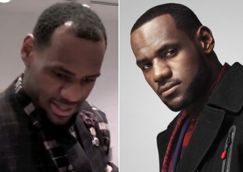 Bron Bron Finally Got Hair Implants!